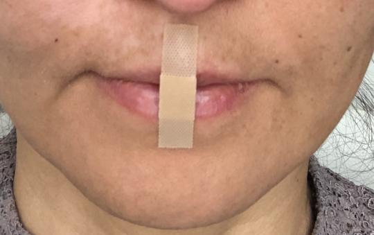 Mouth taping