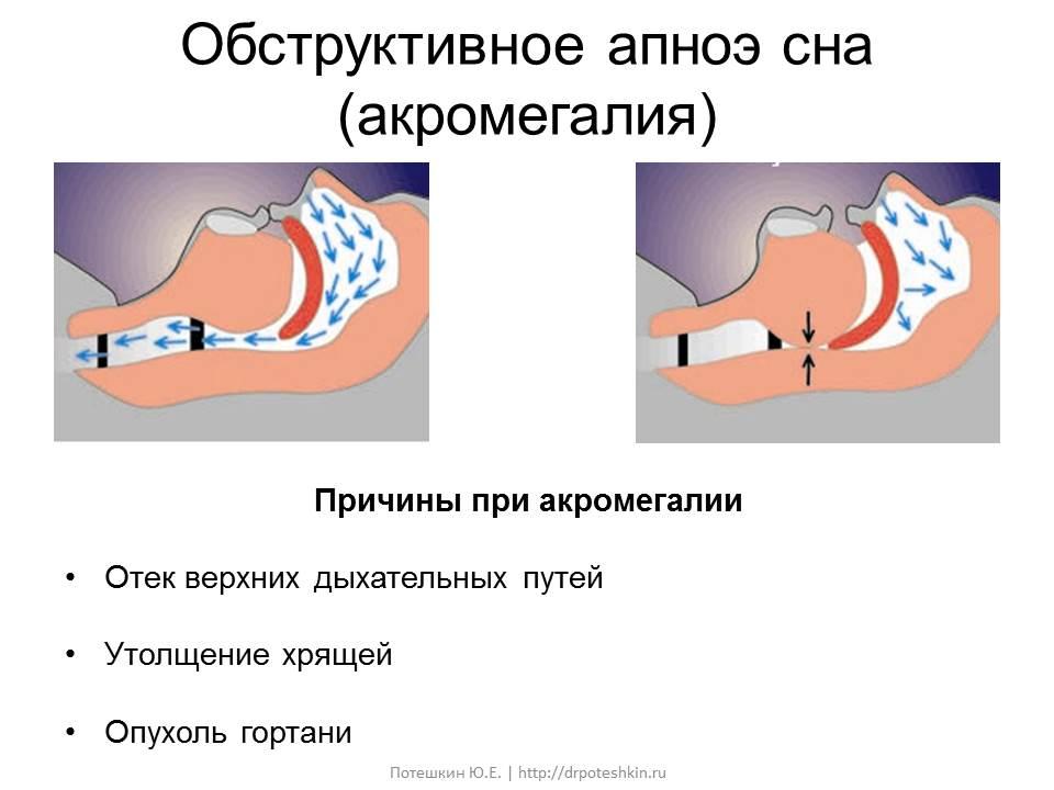 Апноэ акромегалия