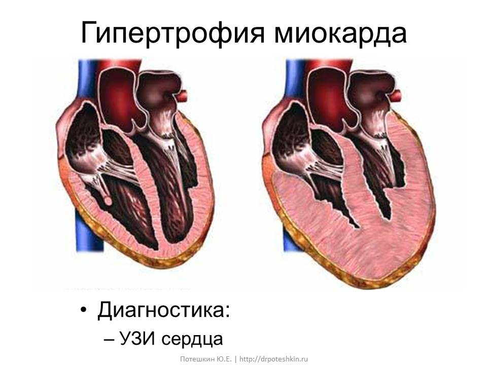 Кардиомиопатия акромегалия