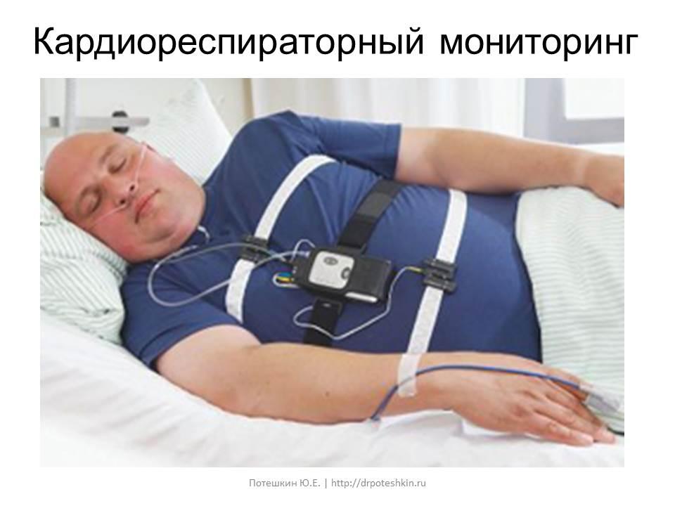 Кардиореспираторный мониторинг