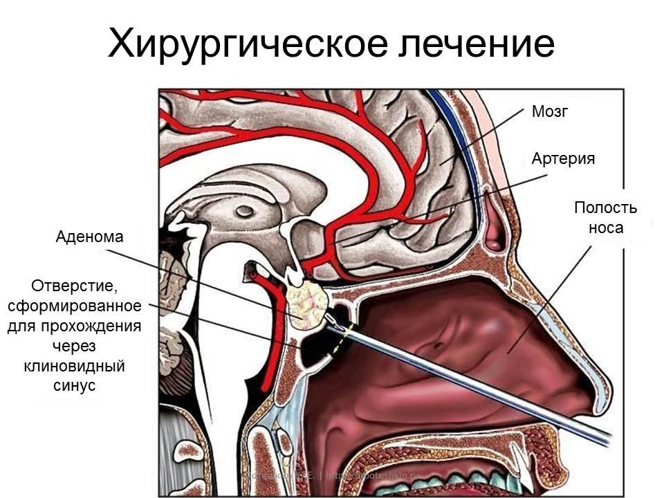 Трансназалаьная аденомэктомия