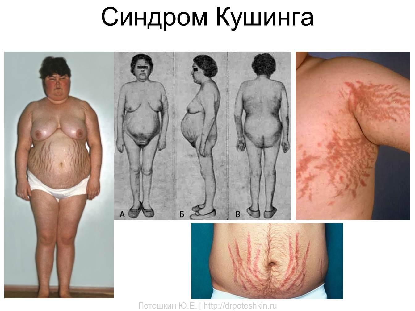 синдром Кушинга клиника