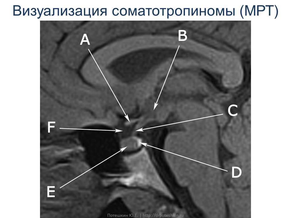 МРТ акромегалия
