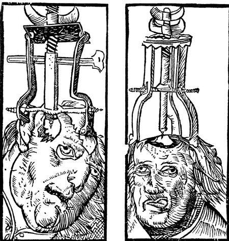 трепанация 1525