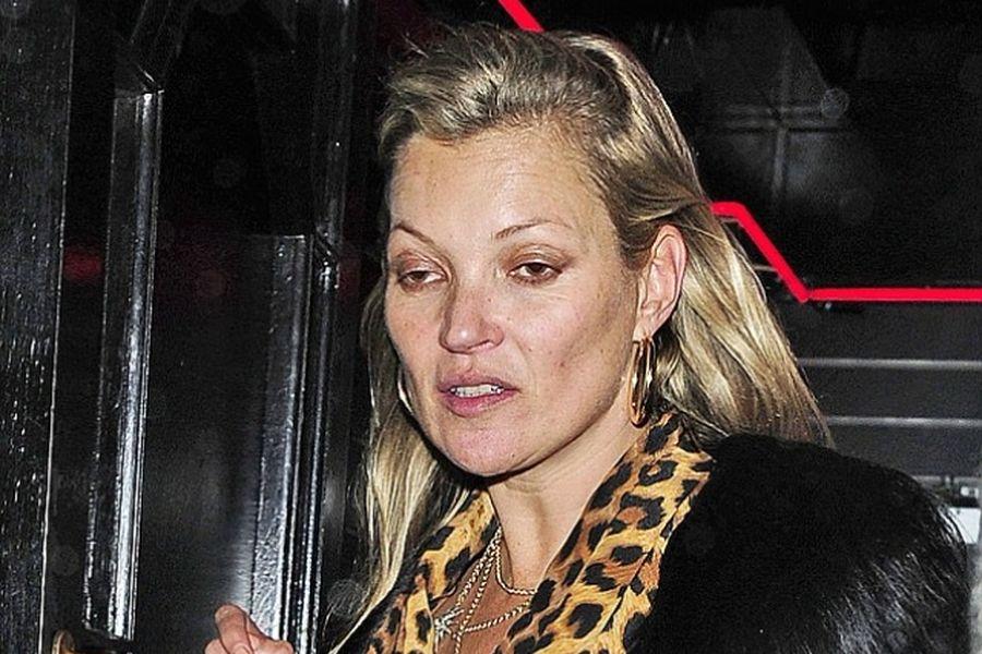 Что случилось с Кейт Мосс?