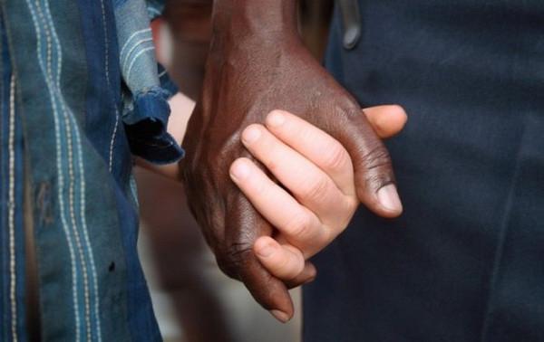 альбиносы-Африканские-это интересно-познавательно-картинки_4944317820