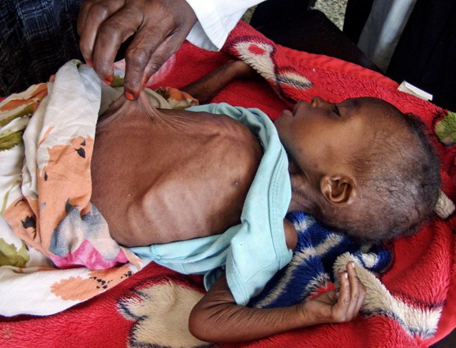 Фото детей умирающих с голоду 43