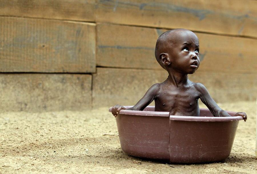 Фото детей умирающих с голоду 34