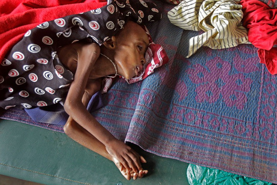 Фото детей умирающих с голоду 23