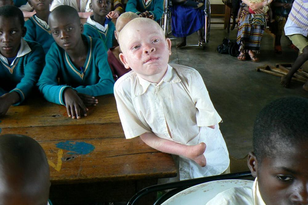 Почему альбиносов убивают в африке