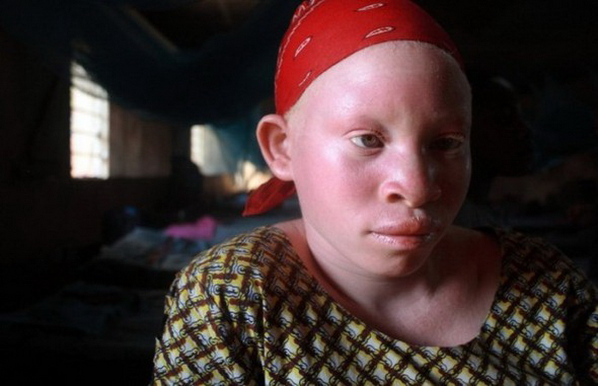 Альбинос — наказание или дар