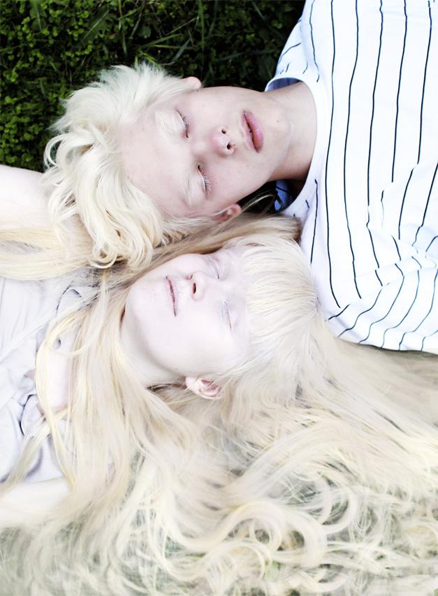 Саша-Молоко-и-Вика-альбиносы-085