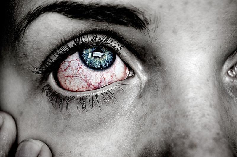 Выбираем глазные капли от покраснения, воспаления, усталости, сухости, конъюнктивита, для увлажнения