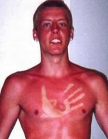 sunburn-fail-elite-daily-2