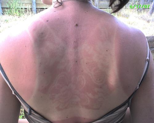 sunburn-fail-elite-daily-7