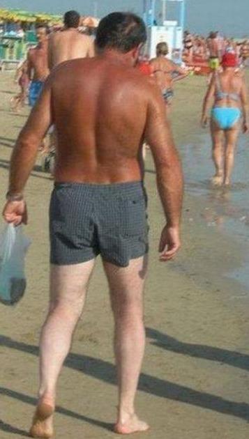sunburn-fail-elite-daily-15