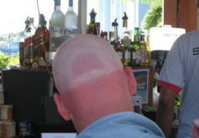 sunburn-fail-elite-daily-17