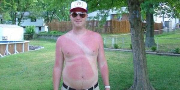 sunburn-fail-elite-daily-111