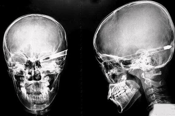 фото рентген головы