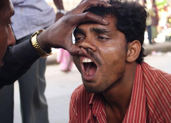 dentist-india-12