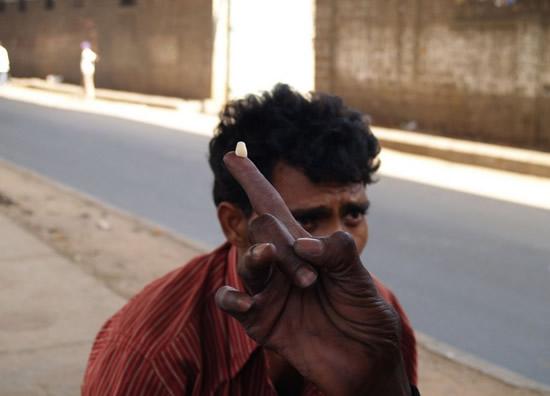 dentist-india-9