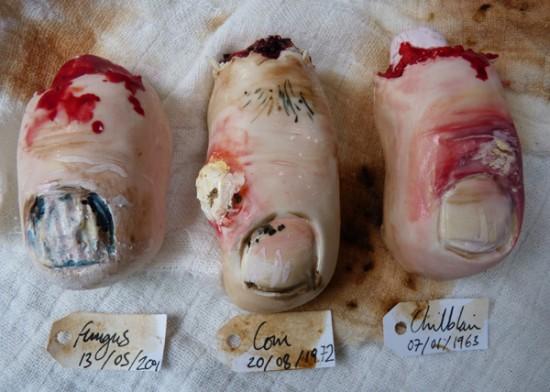 infected-toenail-cookies-550x392