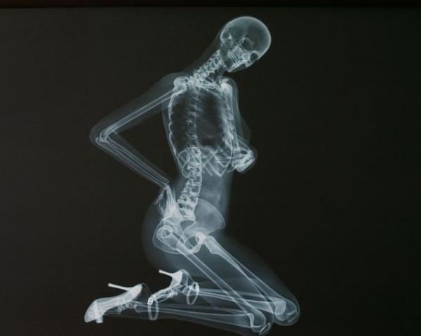 ero-skeleton-9