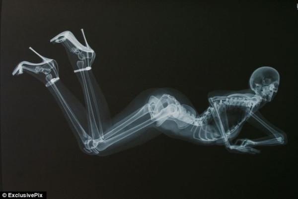 ero-skeleton-13