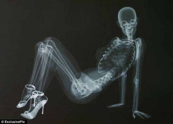 ero-skeleton-12