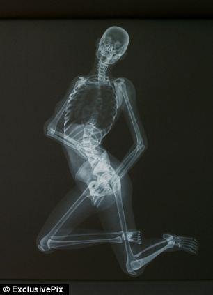 ero-skeleton-7