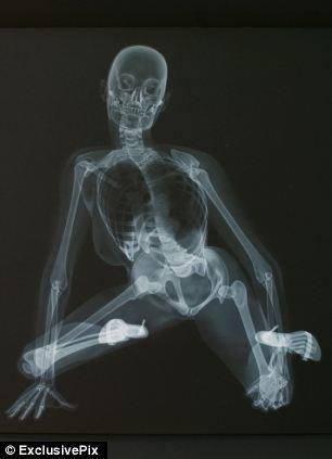 ero-skeleton-4
