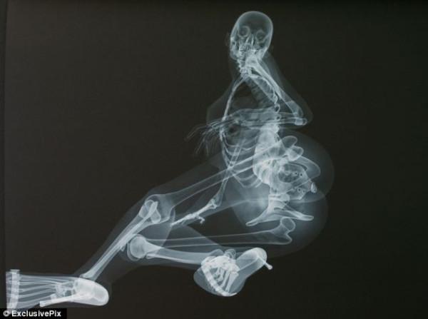 ero-skeleton-3