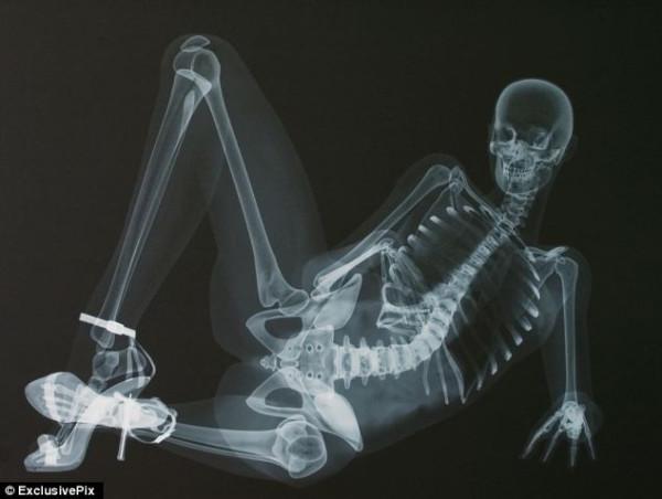 ero-skeleton-1
