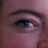 right eye of emma