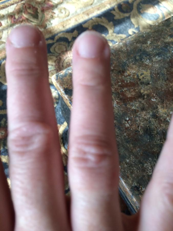 burn middle finger