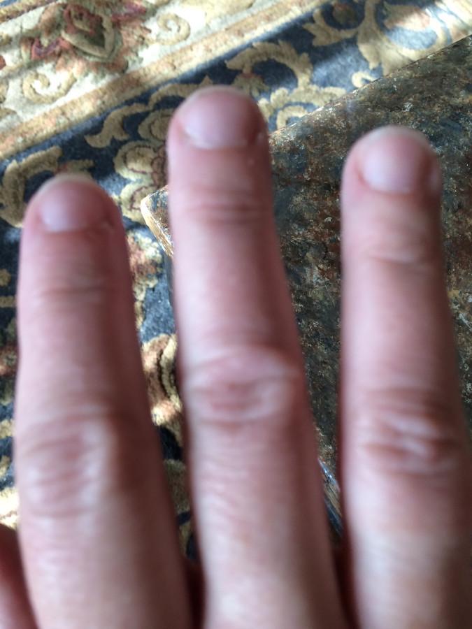 burn ring finger
