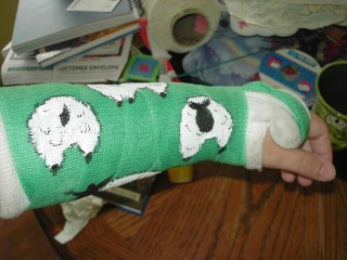 2nd view of cast