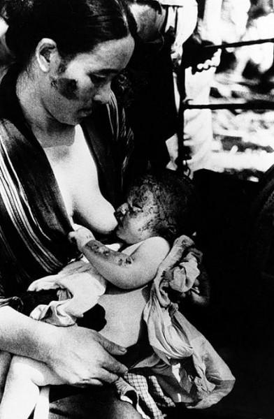 Обожженые взрывом мать и ребенок в 1-м Мед. Госпитале Японии