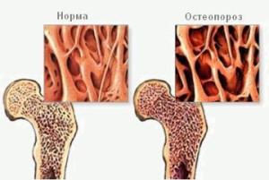 osteoporoz1