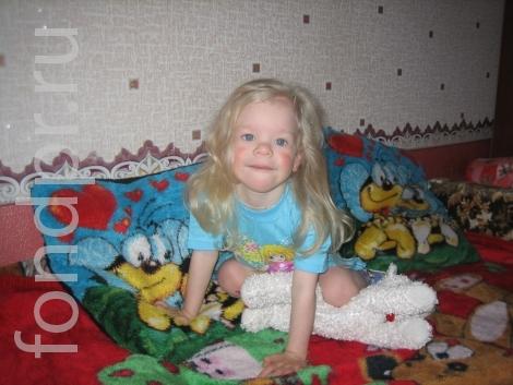 синдром вильямса фото детей
