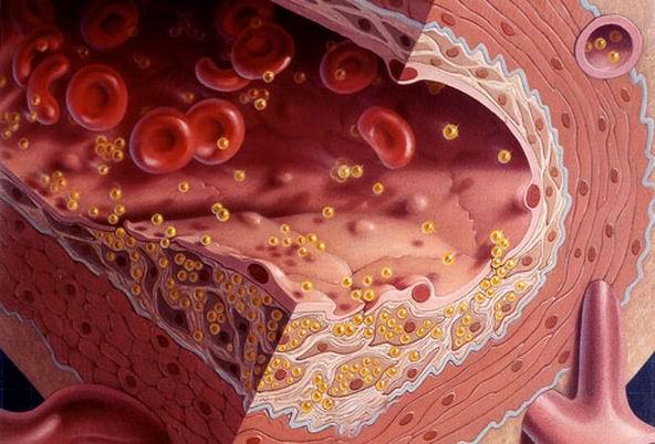 о вреде холестерина
