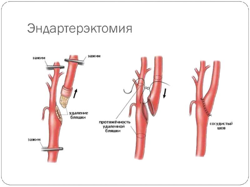 Схема операции на сонной артерии по удалению атеросклеротической бляшки