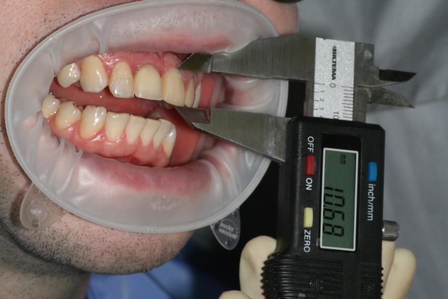 Как удалить передний молочный зуб в домашних условиях