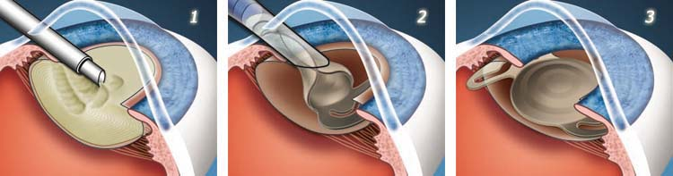 Cataract-Surgery.jpg.pagespeed.ce.KAIGlq-3jx