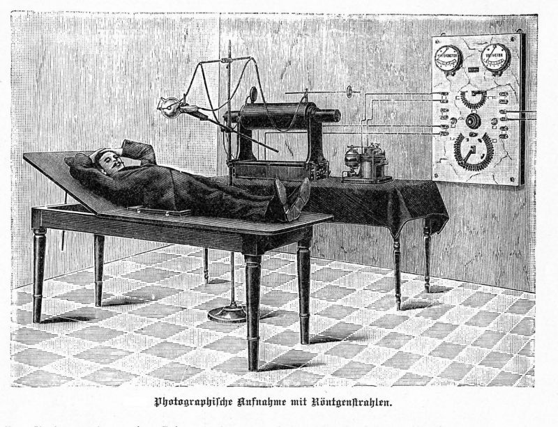 use of a induction coil for x-ray diagnosis (ca 1898)