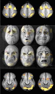 masksbrainscan