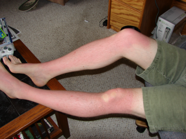 The Sunburn of 19 Jun 2007