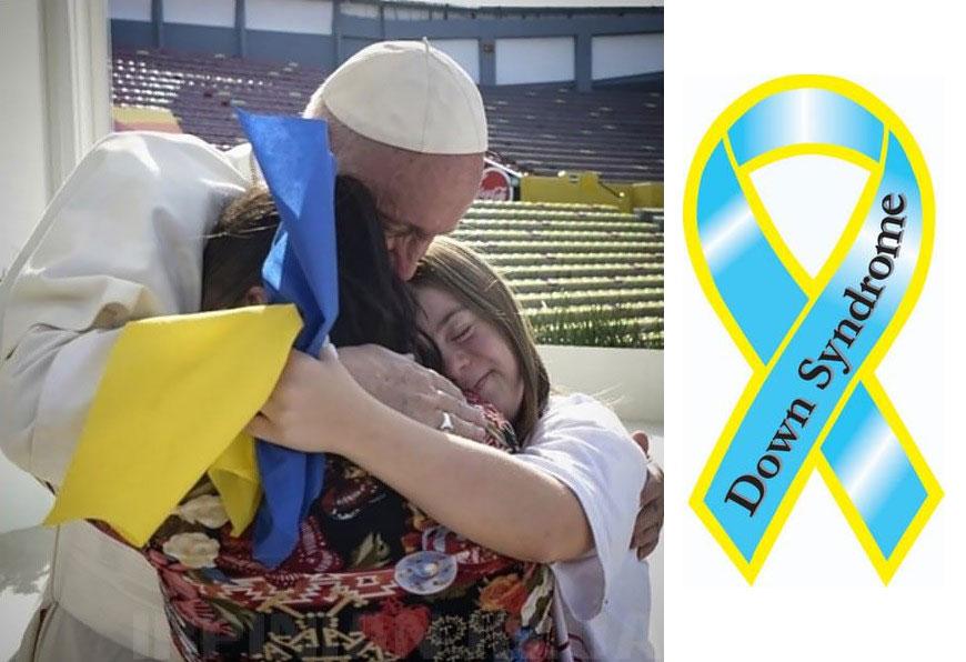 что общего между флагом Украины и синдромом Дауна?