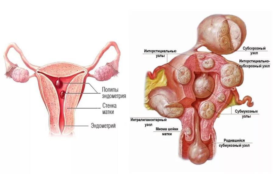 Плацентарный полип у беременных 27
