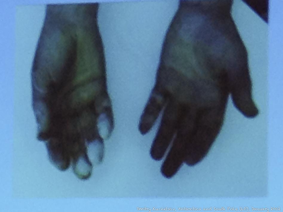 Помороженные руки